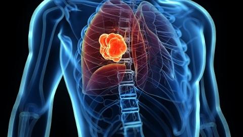 慢阻肺是全球发病率和死亡率较高的疾病之一  反复咳痰喘快查肺功能!