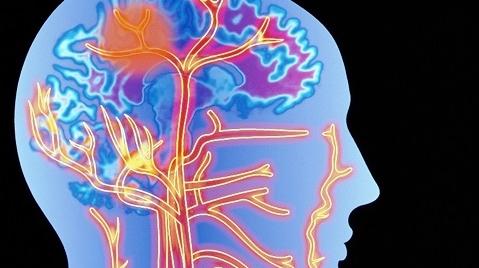 警惕!22岁姑娘突发头痛险丧命 年轻脑出血患者比例增多