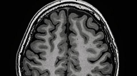 用精准手术帮助服药无效的癫痫患儿重返校园