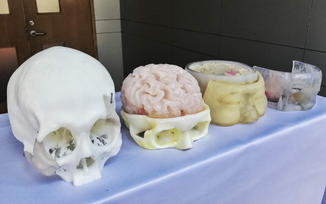"3D打印技术成为神经外科手术""神器"""