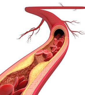 血管生命=寿命  细说每个年龄段的血管问题