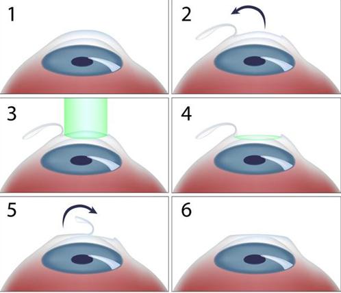 准分子、飞秒、ICL……近视手术怎么选?专家:适合的才是最好的