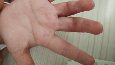 跑步机履带烫伤儿童!瑞金医院已接诊14例 医生:创面复杂 及时送医