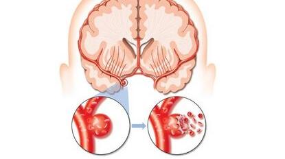 关注颈动脉,预防脑卒中