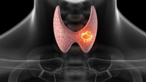 甲状腺癌成上海女性第一高发癌症 专家呼吁定期筛查甲状腺功能
