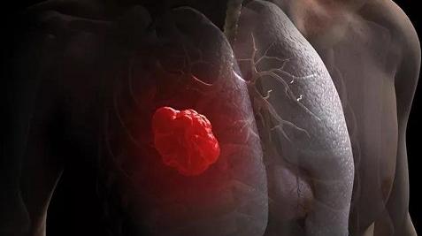 康复有道 | 肺癌群体康复力挺5年生存期
