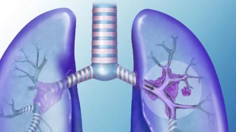 免疫肿瘤治疗突破晚期肺癌诊治瓶颈