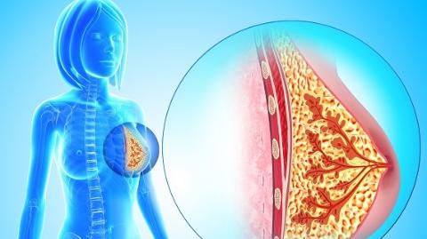 保乳术后放疗患者5年总生存率达97%