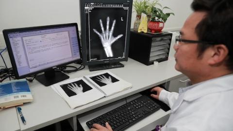 """【新时代新作为新篇章】寒假扎堆看身高医生工作量翻番 AI""""秒读""""骨龄助力医院高效工作"""
