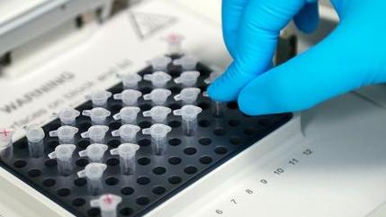 西班牙从去年3月废水样本中检出新冠病毒