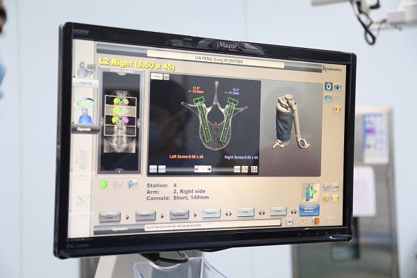 市一医院完成沪上首例首台MAZOR机器人辅助下脊柱肿瘤切除术