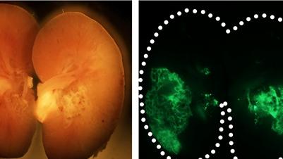 同济大学联合解放军总医院开发干细胞新技术 从尿液中分离细胞再生修复肾脏