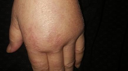 中山医院皮肤科发现一种特殊类型的皮肌炎