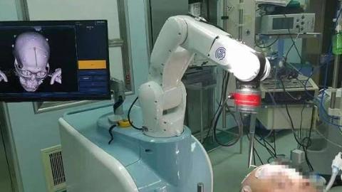 新一代神外3D结构光机器人来了!开拓脑出血治疗新视野